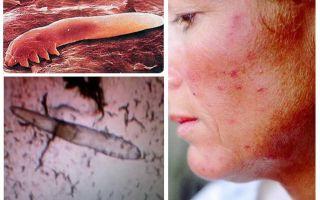 İnsanlarda vücutta ve kafada deri altı bitler