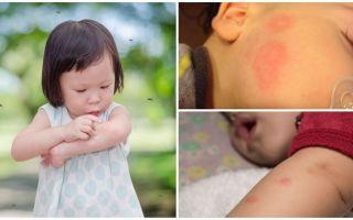 Bir yetişkin veya çocuğun cildinde sivrisinek ısırıkları