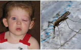 Bir çocuğun sivrisinek ısırığı sonrası kabarık bir gözü varsa ne yapmalı