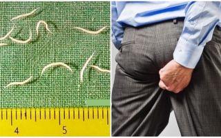 Erişkinlerde pinworm belirtileri ve tedavisi