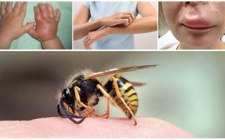 Evde bir yaban arısı sokması olan bir çocuk için ilk yardım