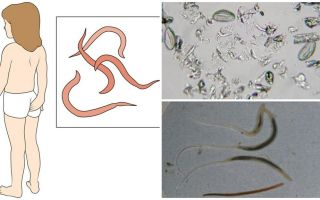 Pinworms nedir ve nasıl görünüyorlar