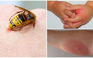 Yaban arısı sokmasına alerjik reaksiyon