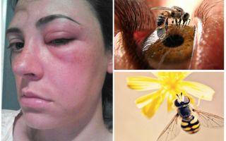 Bir arı gözün içine girerse ve şişerse ne olur?