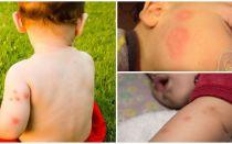 Sivrisinek ısırıklarından sonra çocuklar için fonlar