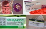Erişkinlerde Giardia tedavisi için en iyi ilaçlar