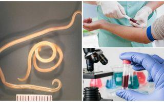 Toksokarlara karşı antikorlar