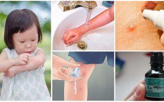 Bir çocukta sivrisinek ısırıklarının nasıl ve ne şekilde tedavi edileceği