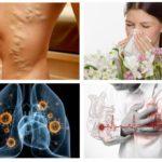 Alerji, kalp hastalığı, tüberküloz