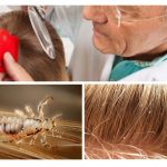 Pedikülozis için saç muayenesi