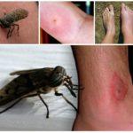 İnsan vücudunda böcek ısırığı