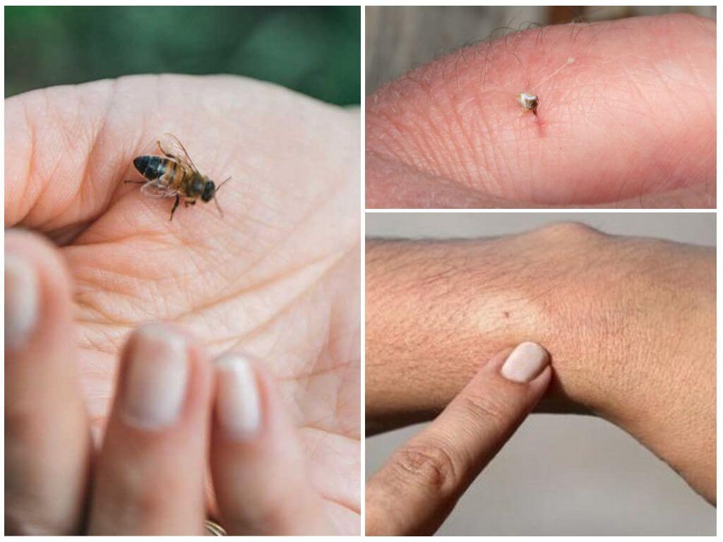 Arı, ısırması ve sokması