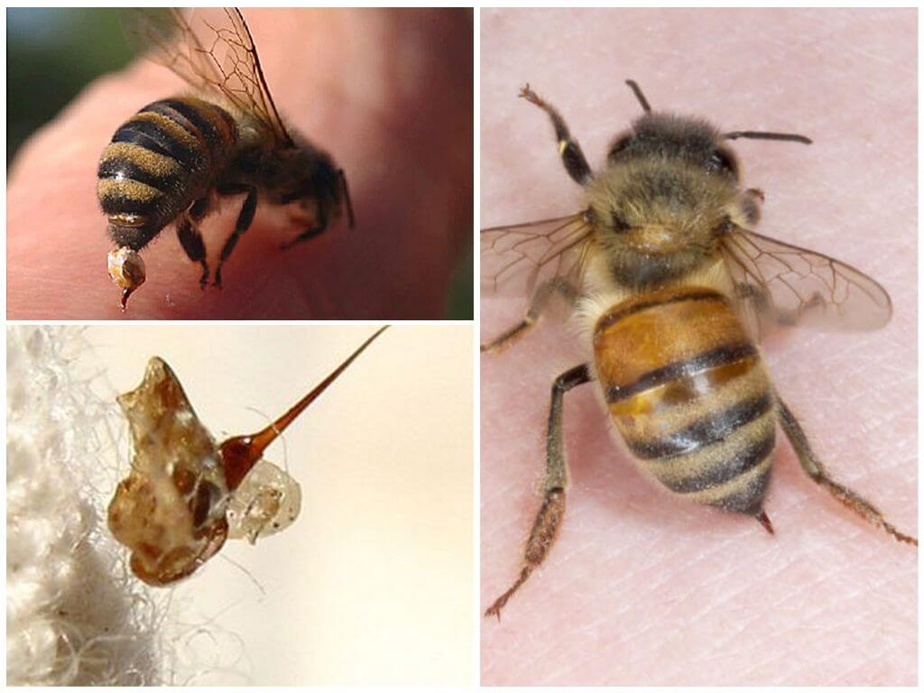 Arı ve sokması