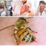 Arı sokması etkileri
