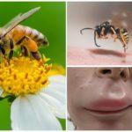 Dudakta arı sokması