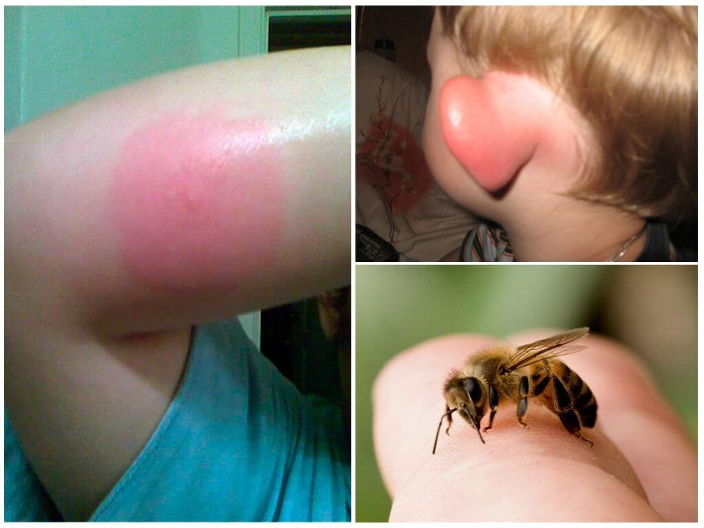 Bumblebee ısırığı