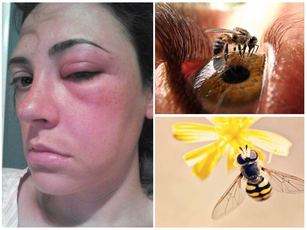 Gözde arı sokması