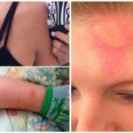 Sivrisinek sokmalarına alerjik reaksiyon