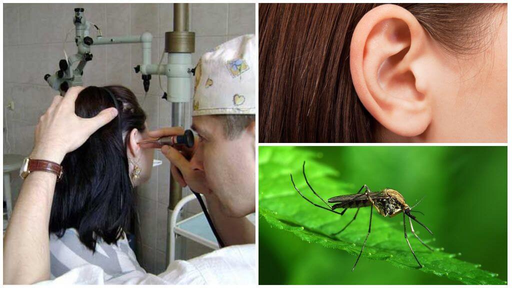 Kulakta sivrisinek