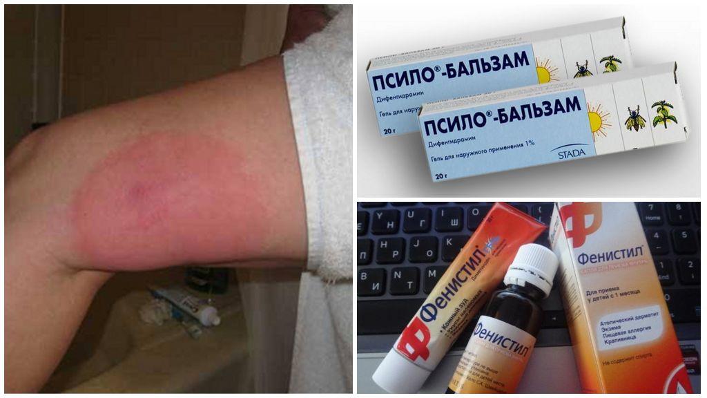 Şişmiş ayakların antihistaminiklerle tedavisi