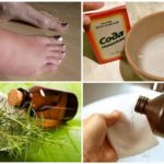 Isırık halk ilaçları yerinde ödem tedavisi