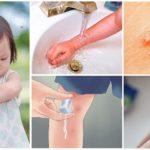 Çocuklarda sivrisinek ısırıkları için ilk yardım