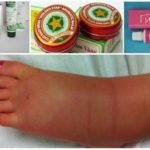 Bacak şişmesinin doğal ilaçlarla tedavisi