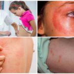 Bir sivrisinek ısırığı sonrası deri döküntülerine benzer