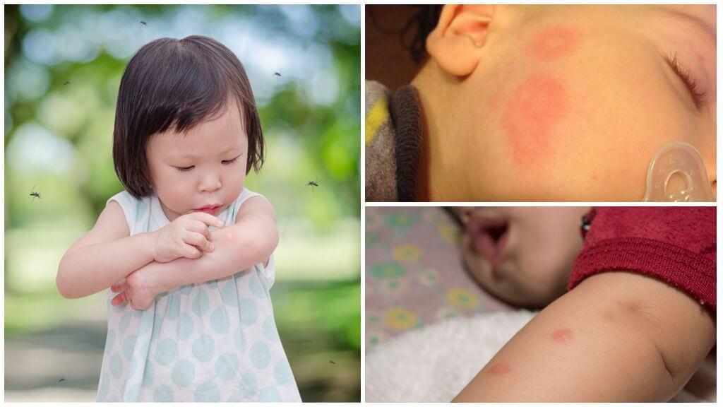 Çocuklarda sivrisinek ısırıkları