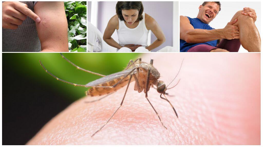 Sıtma Sivrisinek Isırması Sonuçları