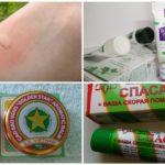 Sivrisinek ısırığı tedavisi