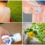 Sivrisinek ısırıkları tedavisi için geleneksel tarifler