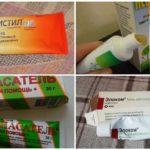 Sivrisinek ısırıkları için çocuk gereçleri