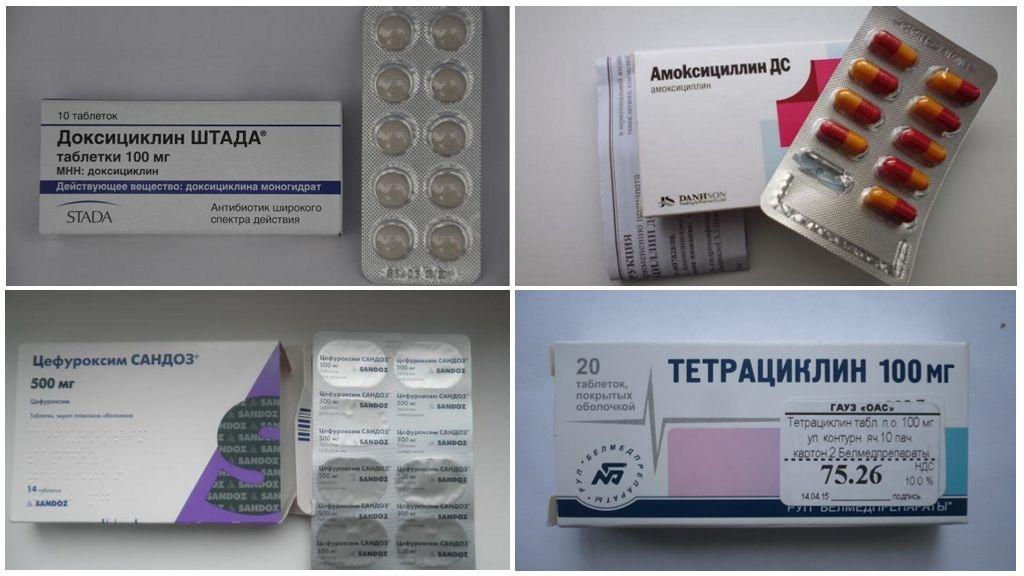 Borreliyoz için Antibiyotikler