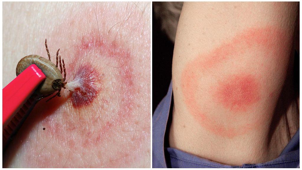Lyme Hastalığı veya Tick-Borne Borreliosis