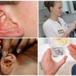 Kulak akarlarının kapsamlı tedavisi
