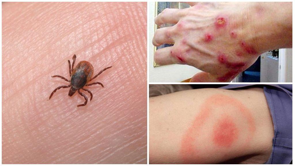 Tick Bite Hastalığı