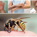 Bir çocukta yaban arısı sokması