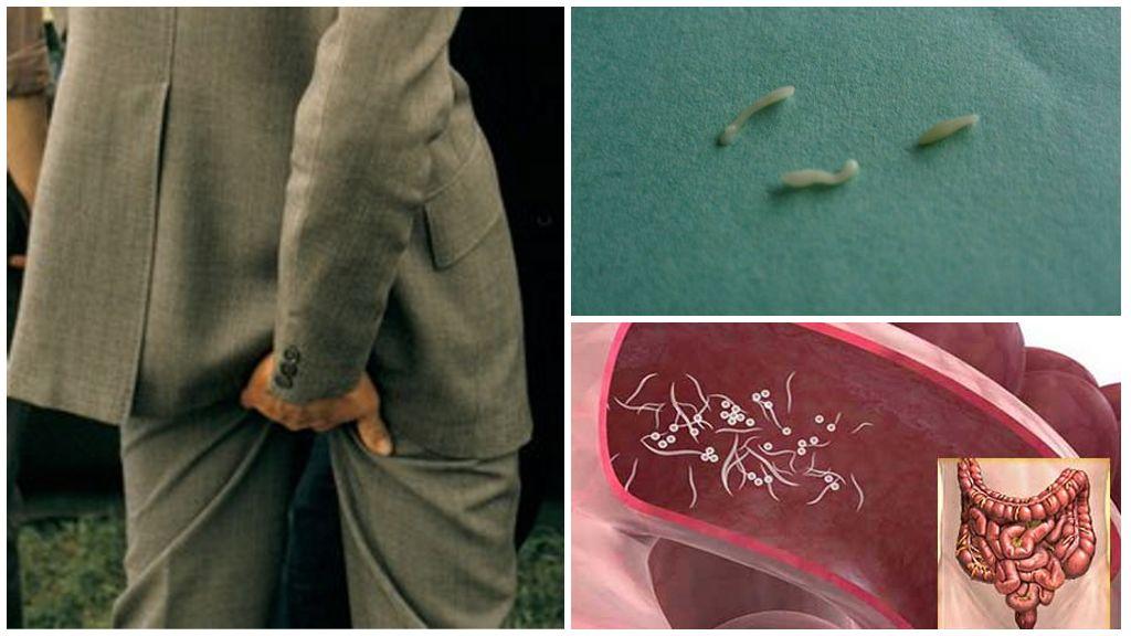 İnsanlarda Pinworms