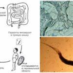Parazit geliştirme döngüsü