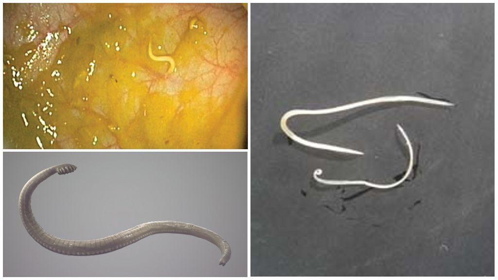 Pinwormların görünüşü