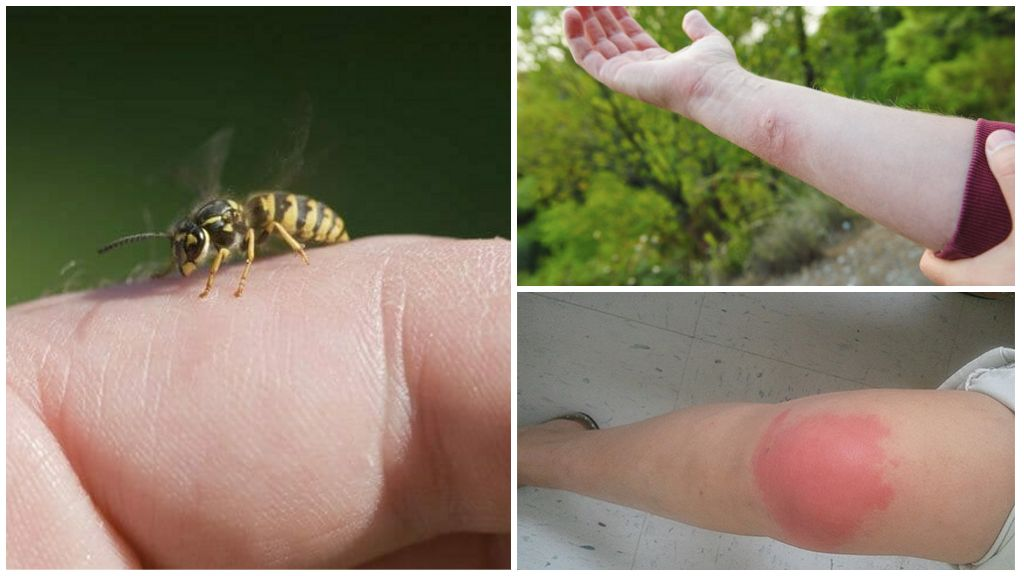 Yaban arısı sokması