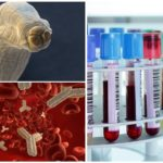 Toksokaroz için kan testi