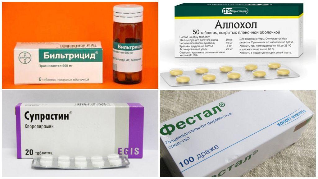 Opisthorchiasis tedavisi