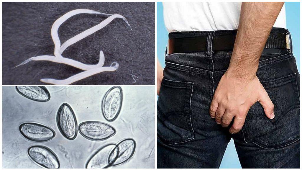 pinworms
